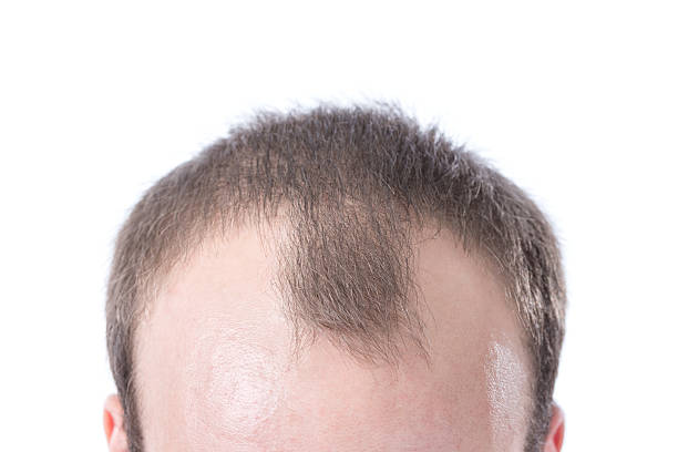 Truth About Hair Transplants